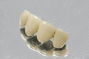 Эстетическая и художественная реставрация зубов с помощью новейших пломбировочных материалов