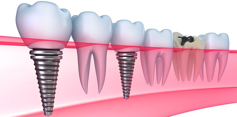 Имплантация зубов в «Жемчужина Стом»
